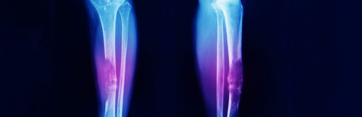 The North of England Bone and Soft Tissue Tumour Service provides the highest level of expertise and specialist care