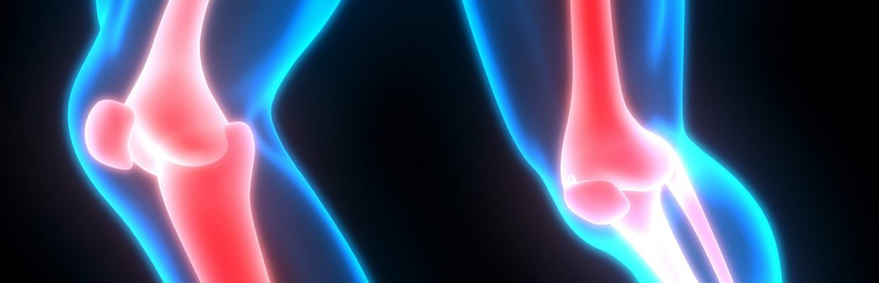 Graphic 3D image of lower limb bones and joints